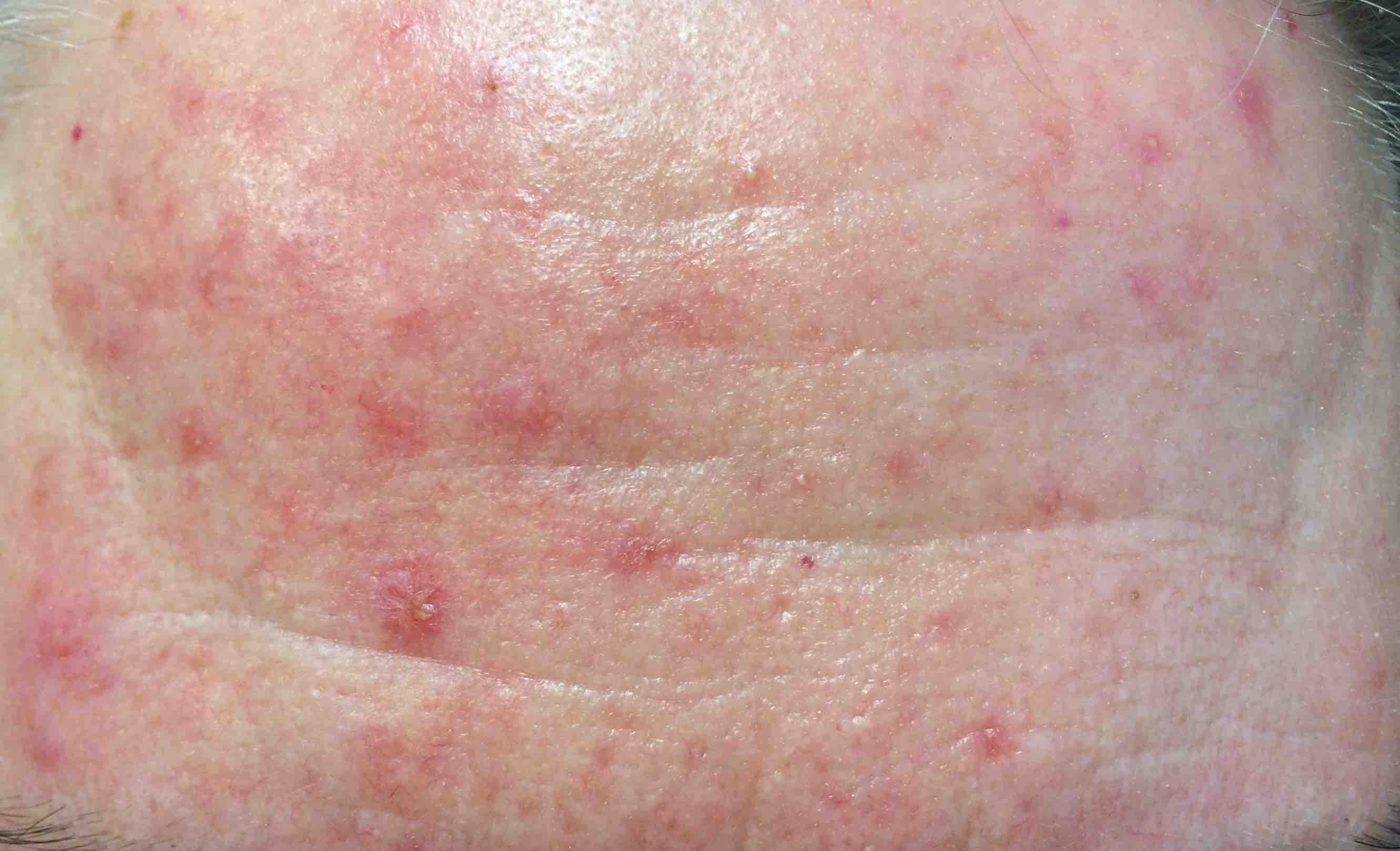 ivermectin rosacea treatment progress A