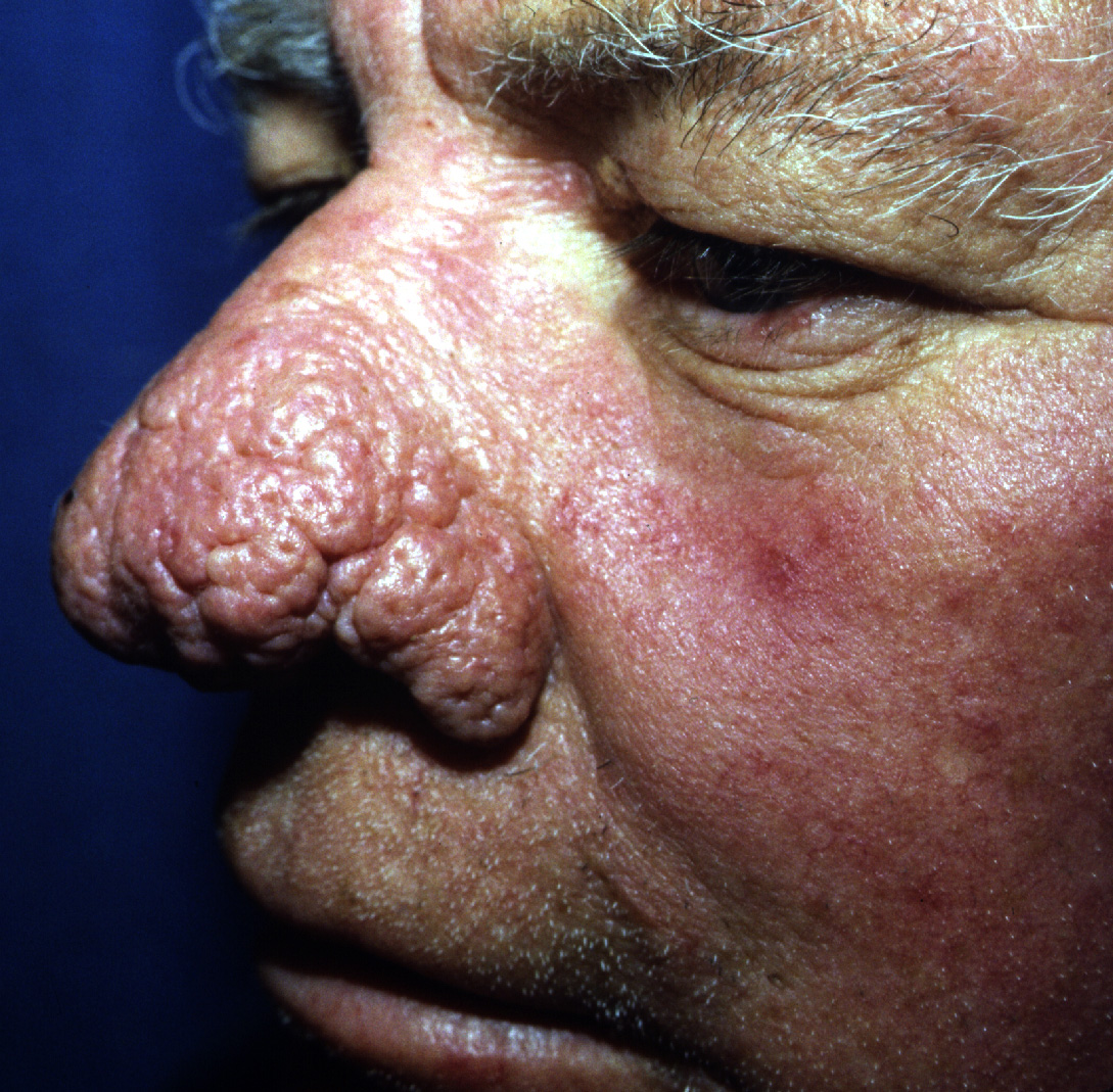 An example of advanced rhinophyma