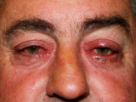 An example of ocular rosacea