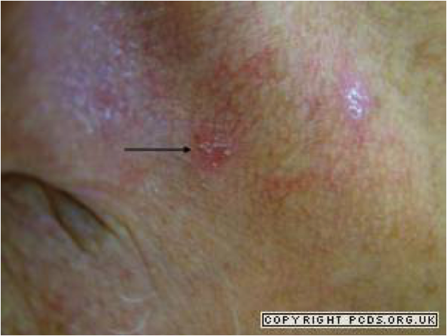 Grade 1: actinic keratosis with evidence of surrounding chronic photo damage