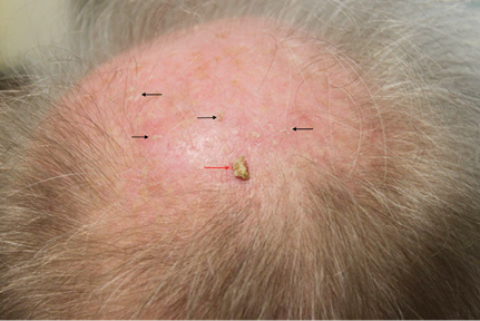 grade 3 actinic keratosis associated with an area of field damage on the scalp