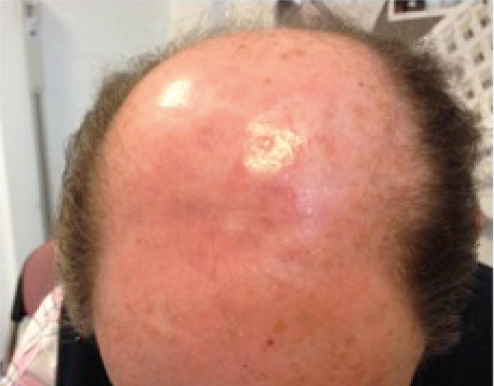 3 months after treatment—a pristine scalp