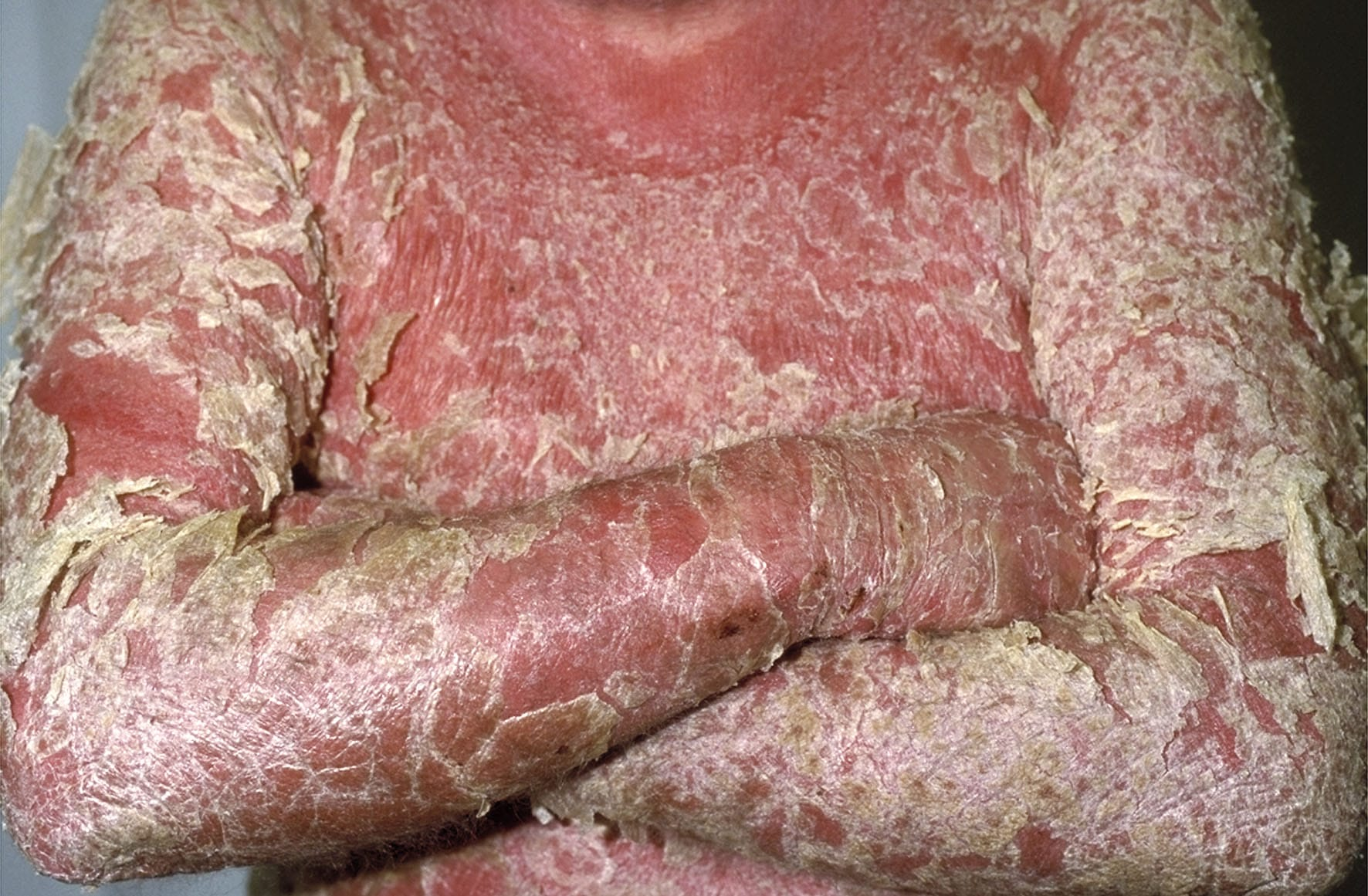 Image result for psoriasis images