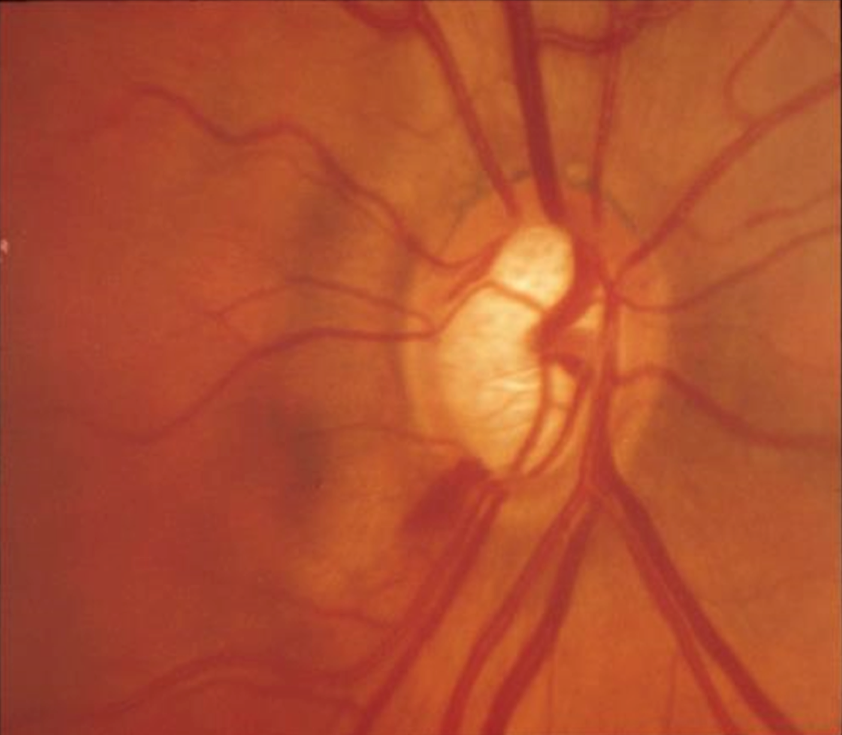 Optic disc cupping and haemorrhage in glaucoma