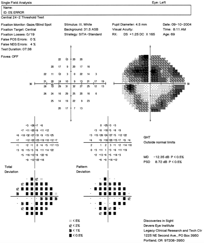 Visual field progression in the left eye in a case of untreated glaucoma over a 3-month period: October 2004