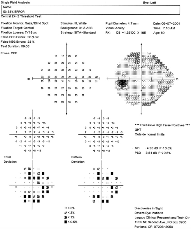 Visual field progression in the left eye in a case of untreated glaucoma over a 3-month period: July 2004