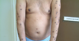 small plaque or guttate psoriasis