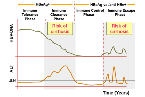 Natural history of chronic hepatitis B infection