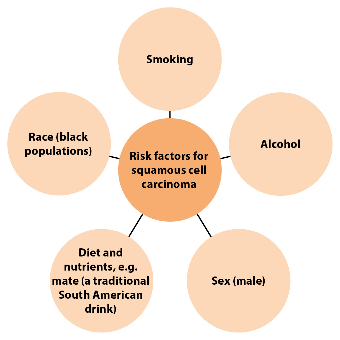 a) Risk factors for oesophageal cancer: squamous cell cancer of the oesophagus