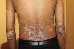typical plaque psoriasis