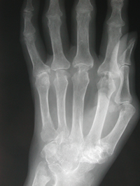 X-ray of hand affected by RA